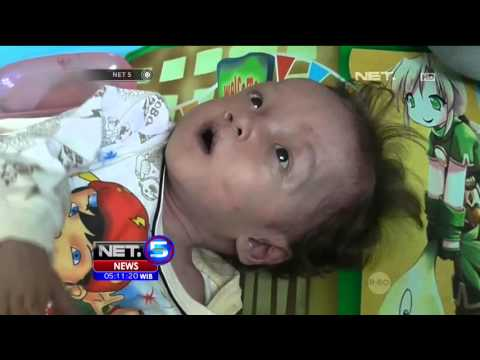 Video Waspada Gizi Buruk Menyerang Anak Anak - NET5