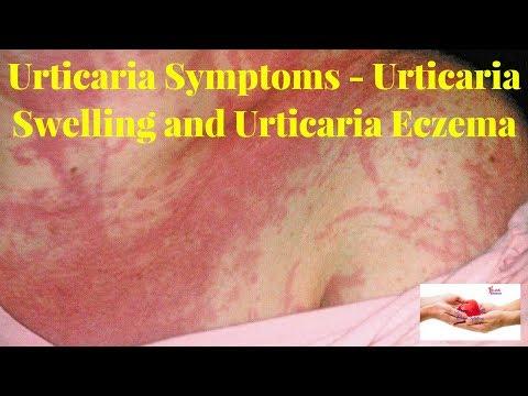 Uso di olio di coronopo del mare a eczema
