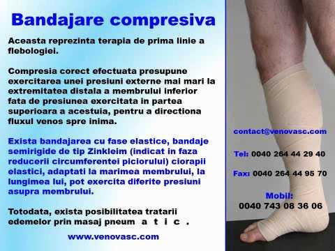 Corp flexibil cu picioare varicoase