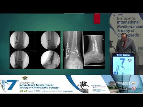 Tarek El Gamal - Posterior Malleolus fractures