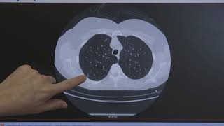Lung Cancer Screening (LCS)