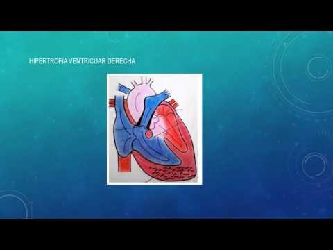 La comunicación de la presión arterial con atmosférica
