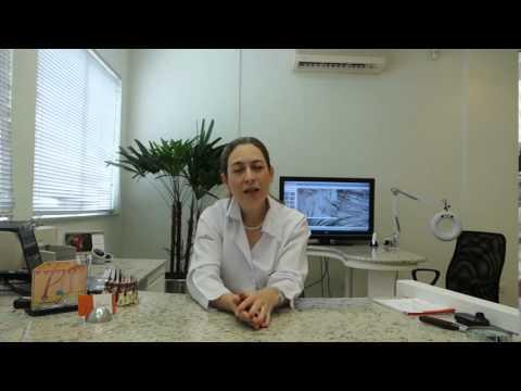 Dra Christine fala sobre Calvície Feminina - Vídeos | Clínica GrafGuimarães
