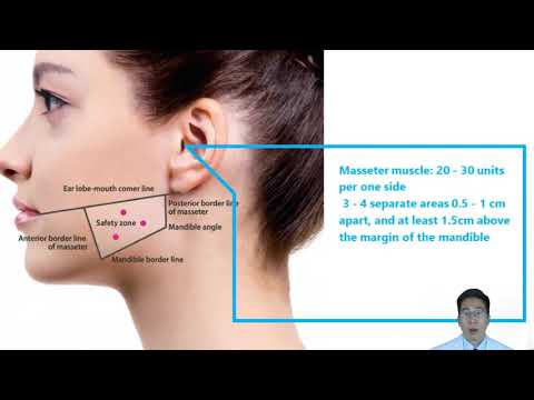 Advanced Botox Injection Techniques for Dentists | Part 3: Masseter ...