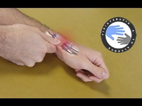 Fluido de tratamiento popular en la articulación de la rodilla