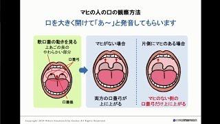 マヒの人の口の観察方法