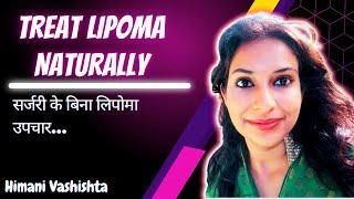 Home Remedies For Lipoma - Kênh video giải trí dành cho thiếu nhi