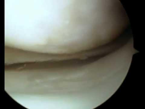 operazione di pulizia cartilagine