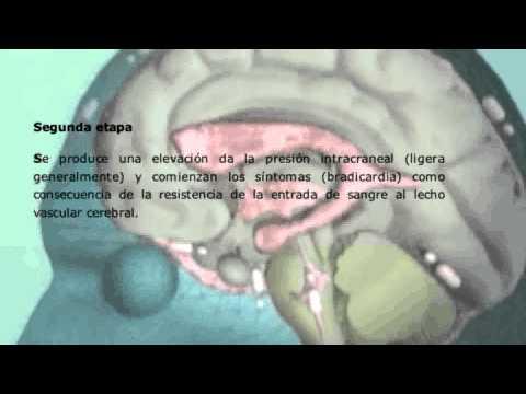 Sulfato de magnesio en el tratamiento de la hipertensión