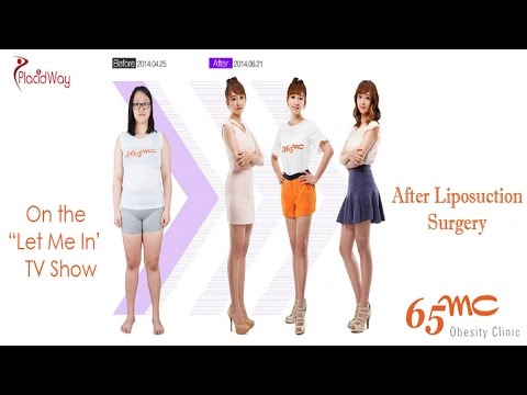 Best Weight Loss Clinic in South Korea