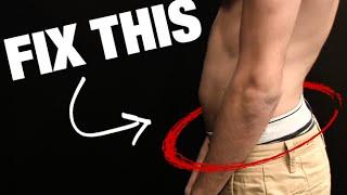 How to Fix Anterior Pelvic Tilt (SIT HAPPENS!)