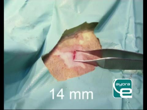 Kā ārstēt prostatītu ureaplazmennogo