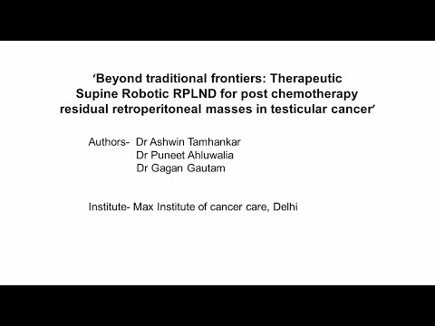 Beyond Traditional Frontiers: Therapeutic Supine Robotic RPLND for post-chemotherapy residual retroperitoneal masses in testicular cancer