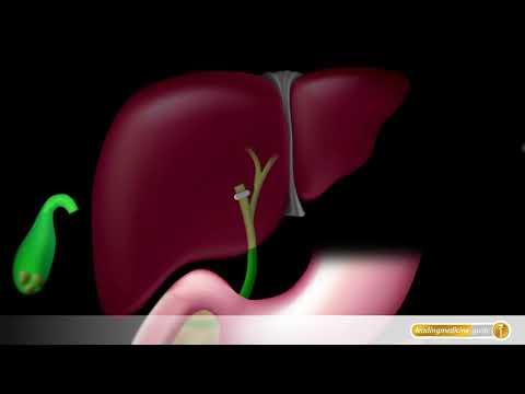 Der Keil der medizinische Mittelpunkt der vaskulösen Chirurgie