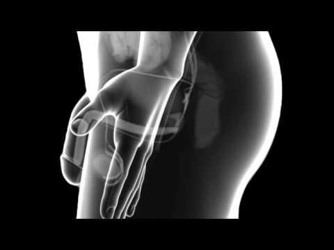 Pietre nelle rimedi popolari della prostata trattamento ghiandola