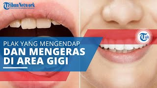 Karang Gigi, Plak yang Mengendap dan Mengeras di Permukaan Gigi