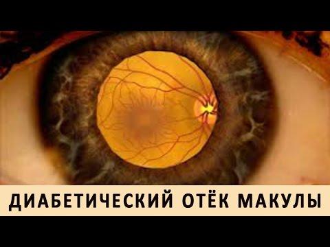 Линзы для очков при сильной близорукости