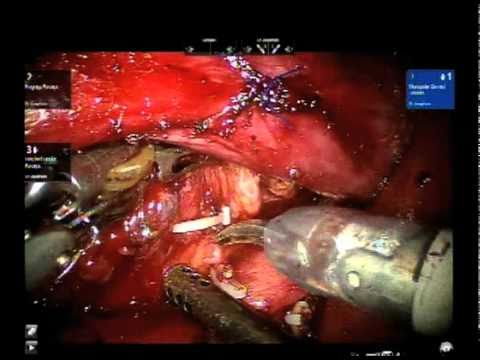 Robotic Retroperitoneal Lymph Nodes Removal