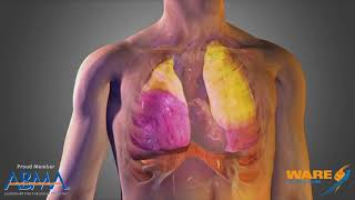 Steam Therapy for the Lungs - Steam Culture