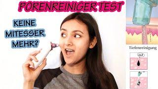 Mitesser & Pickel einfach absaugen? Der Wonderface PORENREINIGER im TEST.