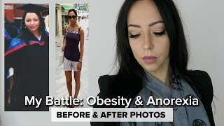 MY STORY | Anorexia & Obesity Journey