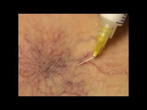 Operacja na żyłach nóg w rodzaju