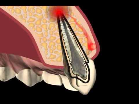 Behandlung von Spondylose Hals