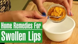 How To Get Rid Of A SWOLLEN LIPS Fast With Home Remedies