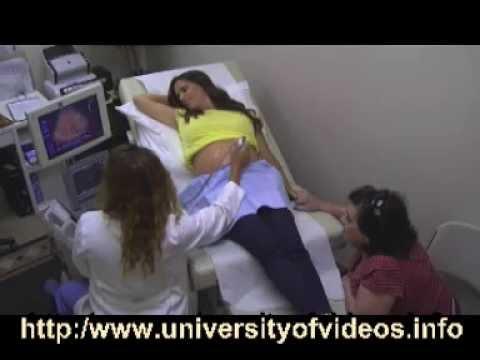 Prostatica neoplasia intraepiteliale