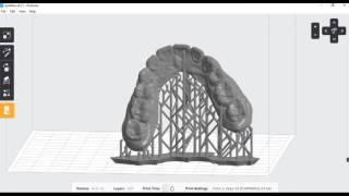 Dental PreForm 3D Printing Tutorial