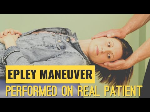 Video Epley Maneuver: Performed on a Real Patient suffering from Vertigo