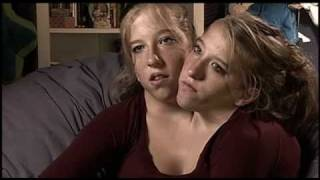 Abigail and Brittany Hensel - The Twins Who Share a Body