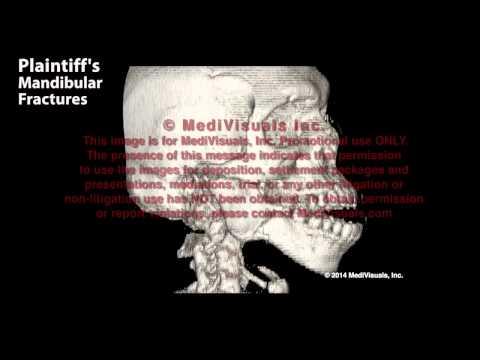 Złamania żuchwy - rekonstrukcja 3D