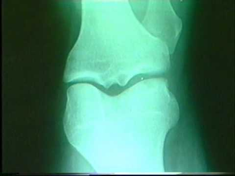 Artroza articulațiilor arcuite ce este