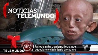 Fallece niña que padecía de envejecimiento prematuro | Al Rojo Vivo | Noticias Telemundo