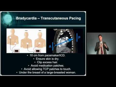 CEN® Exam Review: Cardiovascular Emergencies Part 1 - MED-ED ...
