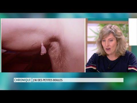Les médicaments non hormonal au psoriasis