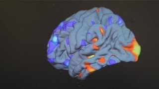 Developing a treatment for autism - science
