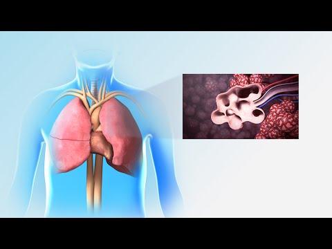 Pulmonary Rehabilitation | Nucleus Health