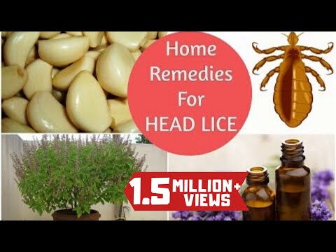 Video Top 5 Home Remedies To Get Rid Of Head LICE & Nits * Sushmita's Diaries