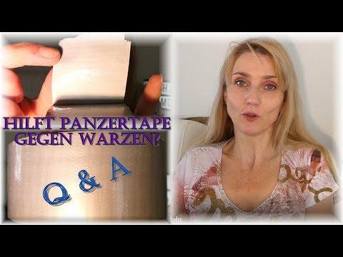 Monoklonalnyje die Substanzen bei der Schuppenflechte