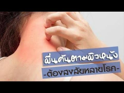 รักษากลากหัว