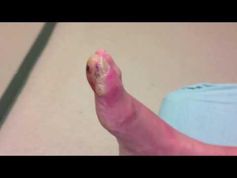 Tratamiento de la inflamación de los pies en la diabetes