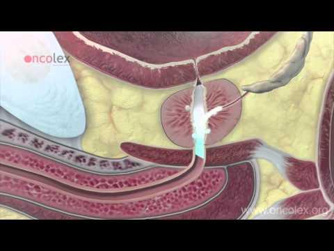 Il cancro alla prostata kribrozny