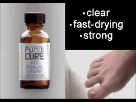 Ay iodine ay maaaring gamutin ang kuko halamang-singaw