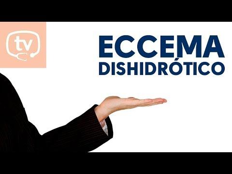 Atopichesky la dermatitis a la diabetes