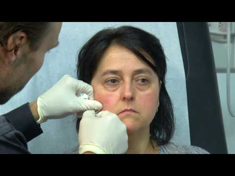Services d'injections offerts par la clinique du Dr. Frédéric Simard chez Dermanaissance