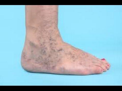 Operazione a varicosity di vene di gambe