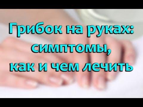 Das Mittel des Schutzes von gribka der Nägel