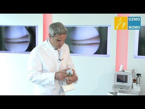 Atherosklerose Behandlung von Hirn- und Halsgefäß